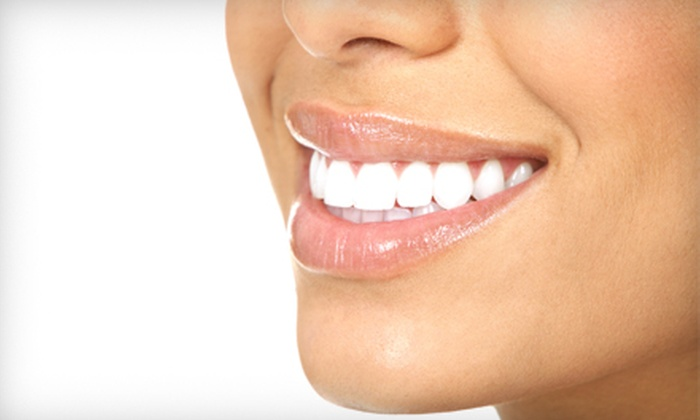 My Texas Smile - Multiple Locations: $99 for a 45-Minute Organic Teeth Whitening at My Texas Smile ($245 Value)