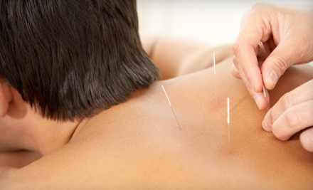 1 Acupuncture Treatment (a $100 value) - Jada Holistic Healing in St. Paul