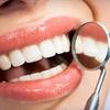 Half Off Teeth-Whitening Treatment