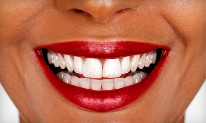 Smile Splendor - North Charleston: $79 for an In-Office Teeth-Whitening Treatment and a Take-Home Whitening Pen at Smile Splendor ($324.90 Value)