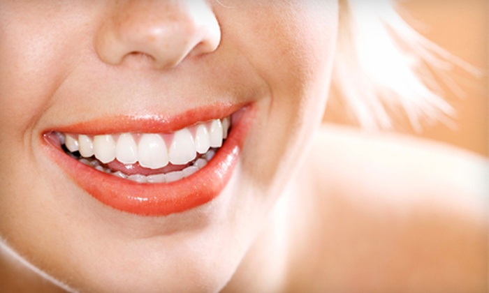 Active Dental - Multiple Locations: $99 for Four Teeth-Whitening Sessions at Active Dental ($495 Value)