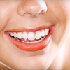 80% Off Teeth-Whitening Sessions at Active Dental