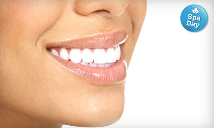 Millbrae Smile Center - Millbrae: $169 for an In-Office Teeth-Whitening Treatment at Millbrae Smile Center ($550 Value)