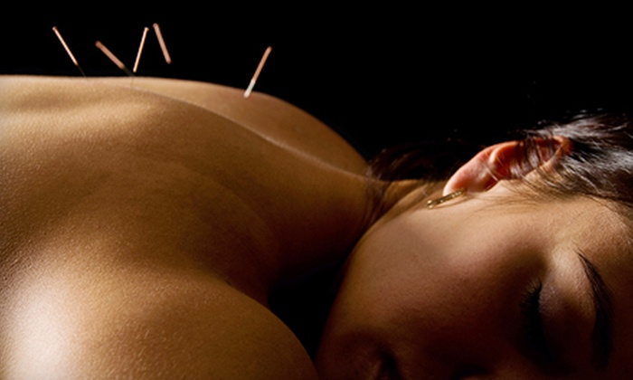 Ellen Ona L.Ac. - Bethel Park: $30 for Introductory Acupuncture Session from Ellen Ona, L.Ac. in Bethel Park ($70 Value)