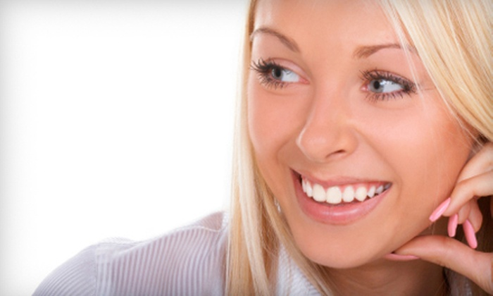All About Smiles - Pike Creek Valley: Two, Four, or Six Full Resin Composite Veneers at All About Smiles (Up to 73% Off)