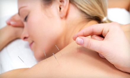 1 Acupuncture Treatment and Initial Consultation (a $70 value) - Gentle Tiger Acupuncture in Madison