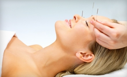 Jean Paul Spa & Salons: 1-Hour Acupuncture Treatment and 30-Minute Consultation - Jean Paul Spa & Salons in Albany