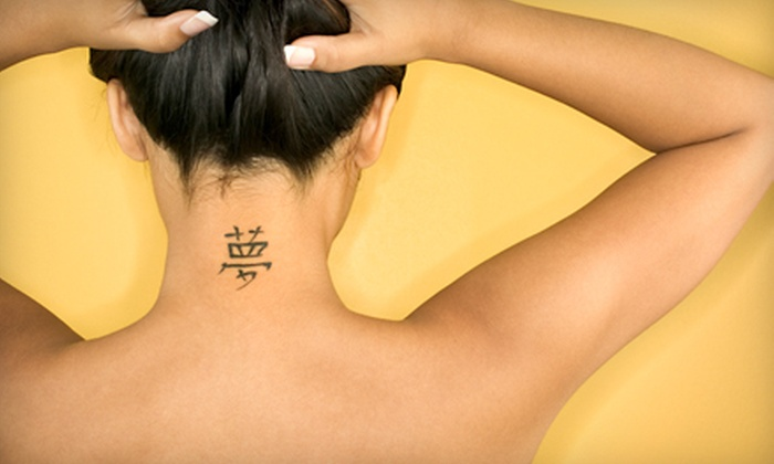 """Cosmetic and Laser Clinic - Painswick South: Two Laser Tattoo-Removal Treatments for 2""""x2"""" or 4""""x4"""" Areas at Cosmetic and Laser Clinic in Barrie"""