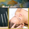 80% Off Acupuncture Session
