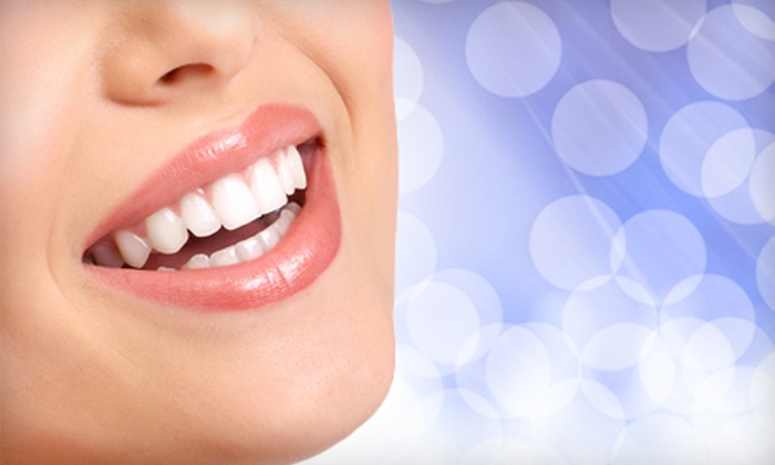 Icing Teeth Whitening - Tallahassee: $59 for an In-Home Icing Teeth Whitening from Bling Dental ($199 Value)