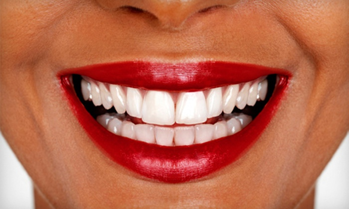 Midwest Dental - Multiple Locations: $49 for a Full Exam, X-rays, Cleaning, and Teeth Whitening at Midwest Dental ($658 Value)