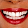 93% Off Services at Midwest Dental