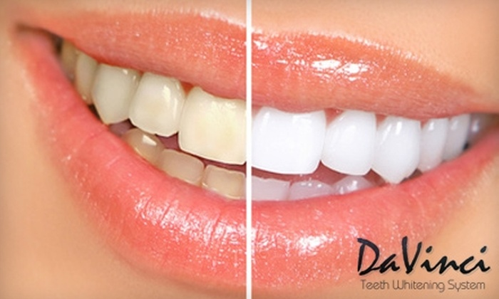 Barcelona Clinical Spa and Salon - Multiple Locations: $99 for a 60-Minute In-Office DaVinci Teeth Whitening at Barcelona Clinical Spa and Salon in Fort Collins or at Pure MediSpa and Salon in Windsor ($317 Value)