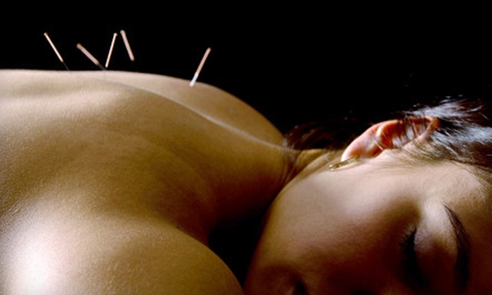 Desert Health Acupuncture Clinic - Alta Monte: $35 for Health History Consultation and Acupuncture Session at Desert Health Acupuncture Clinic ($85 Value)