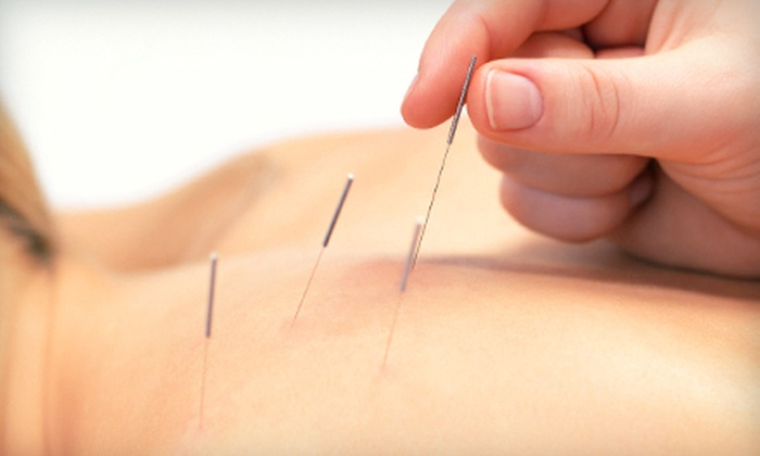 Jason Rinker Acupuncture & Traditional Chinese Medicine - Multiple Locations: One or Three Acupuncture Treatments at Jason Rinker Acupuncture & Traditional Chinese Medicine (Up to 74% Off). Two Locations Available.