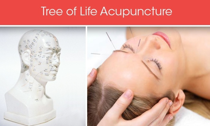 Tree of Life Acupuncture - Union Square: $45 for Exam, Consultation, and Acupuncture Session at Tree of Life Acupuncture ($130 Value)