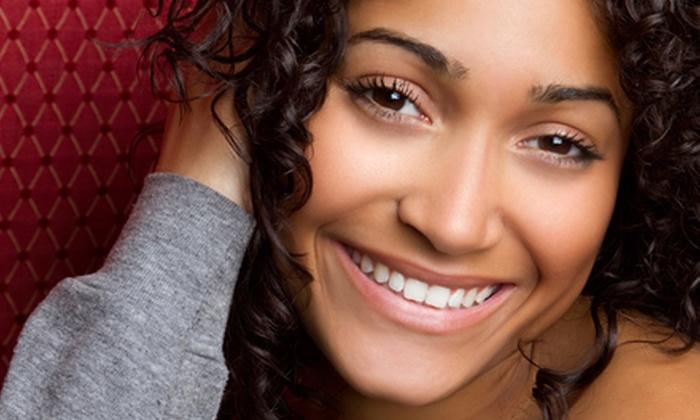 Affinity Salon - Coronado Area: $69 for Teeth Whitening at Affinity Salon ($159 Value)