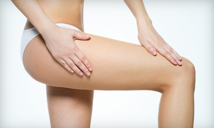Luxor Medical Spa - Newland: Two Laser Spider-Vein Treatments or One Sclerotherapy Session at Luxor Medical Spa in Huntington Beach (Up to 75% Off)