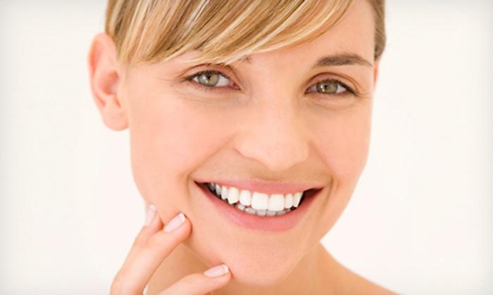 KissMe! Teeth Whitening: $25 for Deluxe Home Teeth-Whitening Kit from KissMe! Teeth Whitening ($118 Value)