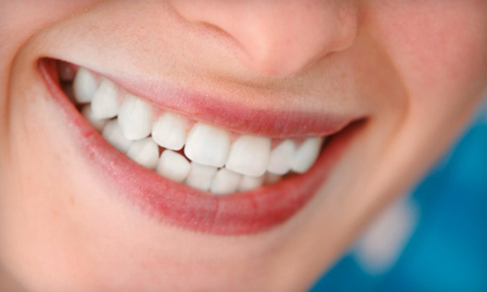 Dentist Columbia SC - Northwest Columbia: $89 for a Teeth-Whitening Package with a Dental Exam, Cleaning, and X-rays at Dentist Columbia SC (Up to $770 Value)
