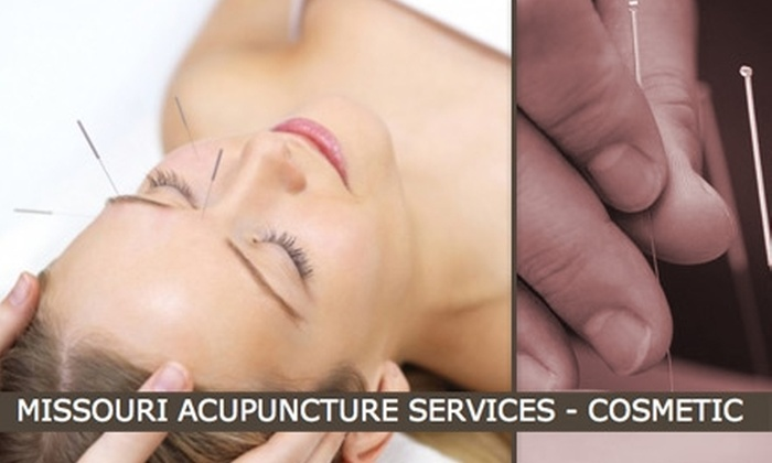 Missouri Acupuncture Services - Crossroads: $25 for One Cosmetic Acupuncture Treatment at Missouri Acupuncture Services ($80 Value)