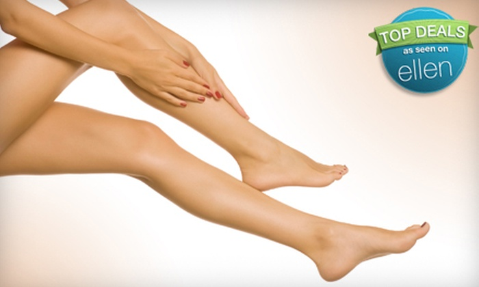 Venocure - Dearborn: $99 for Consultation and Two Sclerotherapy or Veinwave Spider-Vein Treatments at Venocure in Dearborn ($720 Value)