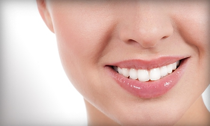 Dr. Lisa Chan-Flagg - Santa Monica: $150 for an In-Office Teeth-Whitening Session from Dr. Lisa Chan-Flagg in Santa Monica ($550 Value)