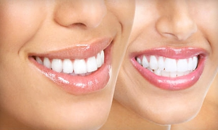 Dental Clinics of Texas - Copperwood: Dental Services at Dental Clinics of Texas. Three Options Available.
