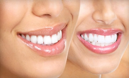 Dental Clinics of Texas: 1 Custom Teeth Whitening Including 2 Tubes of Whitening Gel and a Custom Bleaching Tray - Dental Clinics of Texas in Houston