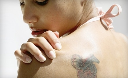 1 Tattoo-Removal Session on up to 4 Square Inches - Rebirth Laser Studio in Edmonton