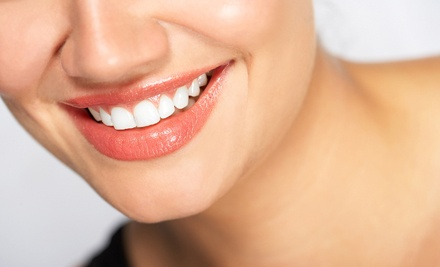 One In-Office Teeth-Whitening Treatment (a $99 value) - New Look Laser in Surrey