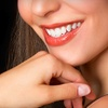 67% Off Teeth Whitening in Greenwood Village