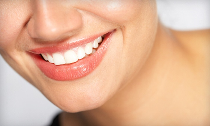 Smile Plus Dentistry - Parkmont: $2,799 for a Complete Invisalign Treatment at Smile Plus Dentistry in Fremont (Up to $6,000 Value)