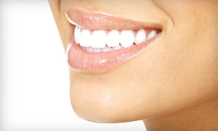 Bridgewater Dental Care - Westfield: $119 for an In-Office Teeth-Whitening Treatment at Bridgewater Dental Care in Carmel ($635 Value)