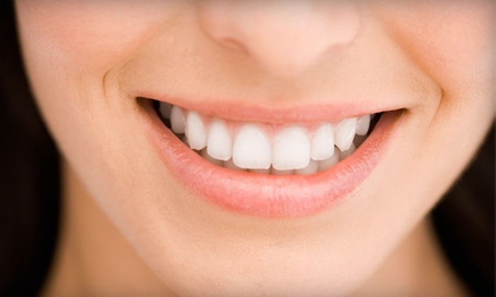 Rapid Brite Whitening - Park West: $75 for a Teeth-Whitening Treatment and Take-Home Whitening Kit at Rapid Brite Whitening ($179 Value)