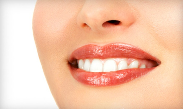 Kirchner Dental - Jeffersonville: Dental Exam, X-rays, Cleaning, and Teeth Whitening or Zoom! Teeth-Whitening Treatment at Kirchner Dental in Jeffersonville