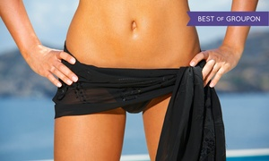 Transform Medspa: Laser Hair Removal Sessions at Transform Medspa (Up to 86% Off). Nine Options Available.