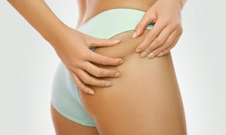 3 o 5 sesiones de diatermia corporal, presoterapia y masaje drenante en 1 o 2 zonas desde 29,90 € en CC Láser