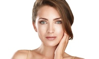 Fractional RF Microneedling or Thermage - One ($139) or Two Sessions ($269) at Prestige Therapies (Up to 2,800 Value)