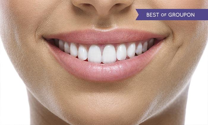Studio Dentistico Dr.ssa Anna Lamonica - Pescara: Visita odontoiatrica con pulizia e smacchiamento più otturazione e sbiancamento led (sconto fino a 82%)