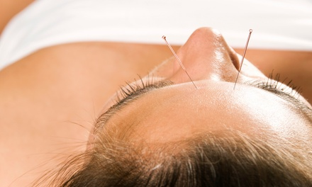 Initial Exam with One or Three Acupuncture Treatments at Acupuncture & NAET Clinic (Up to 79% Off)