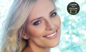 CL Estética: CL Estética – Barro Preto:1, 2 ou 3 visitas de limpeza de pele com extração, peeling diamante, drenagem e máscara