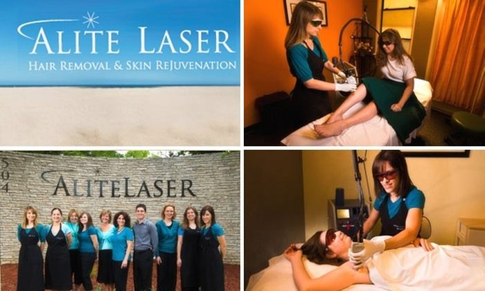 Alite Laser Hair Removal and Waxing  - Downtown: $185 for 3 Treatments with Alite Laser Hair Removal