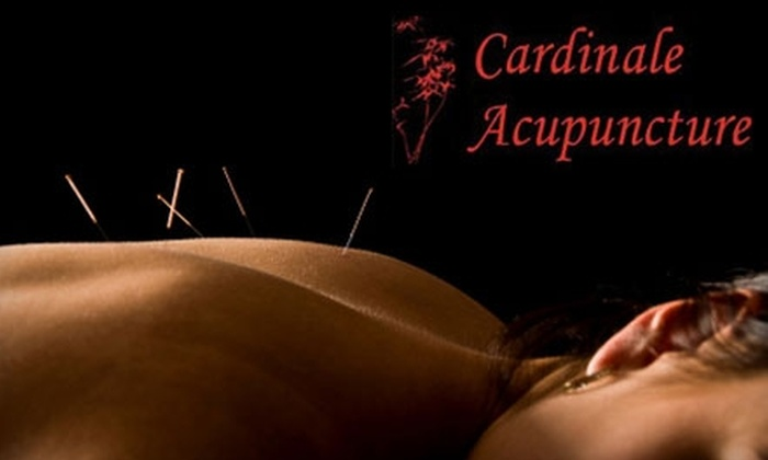 Cardinale Acupuncture - Multiple Locations: $30 for a One-Hour Acupuncture Session at Cardinale Acupuncture ($75 Value)