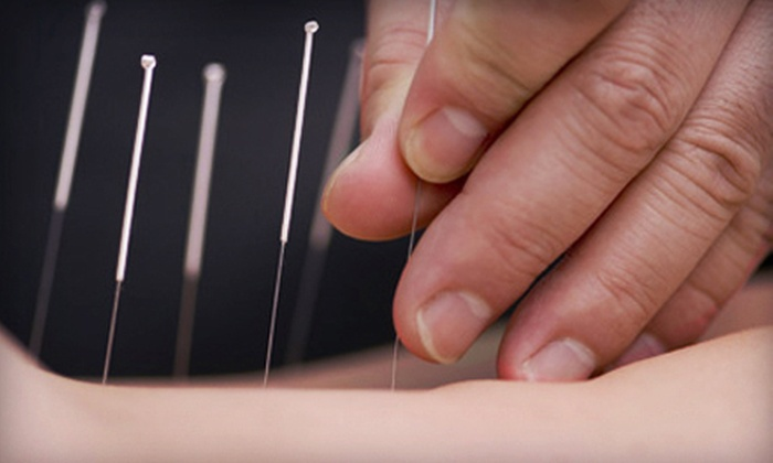 Radiant Point Acupuncture - Northampton: $45 for One Acupuncture Session at Radiant Point Acupuncture in Northampton ($95 Value)