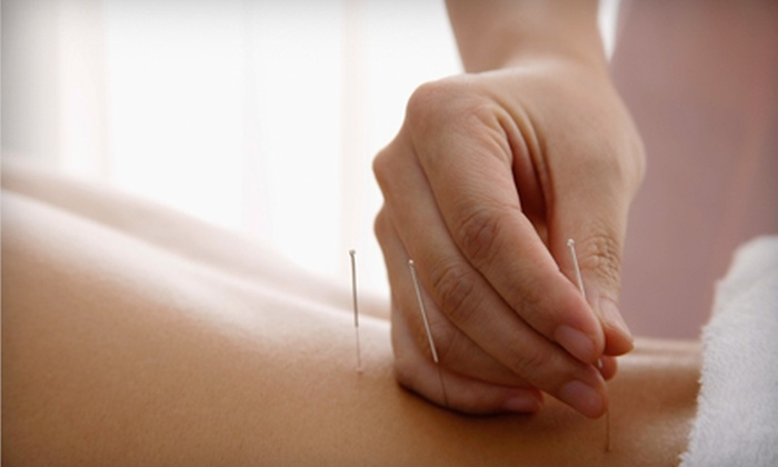 Dr. Melissa Maher, DC PA - Sunset Pines: Acupuncture with Massage Packages at Dr. Melissa Maher, DC PA, in Delray Beach (Up to 80% Off). Three Options Available.