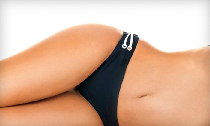 BodyTrends, the ElectroSpa - South Oklahoma City: $139 for Laser Spider-Vein Removal at BodyTrends, the ElectroSpa ($300 Value)