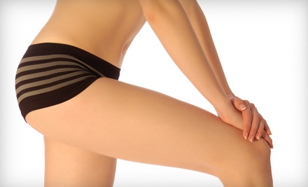 9 Zerona Laser Body-Contouring Treatments (a $2,395 value) - Laser Hair Removal of Milford in Milford