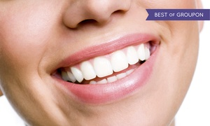 Richard D. Morgan D.D.S Cosmetic & Family: 2, 4, 6, or 8 Veneers with X-rays and an Exam from Richard D. Morgan D.D.S Cosmetic & Family (Up to 65% Off)