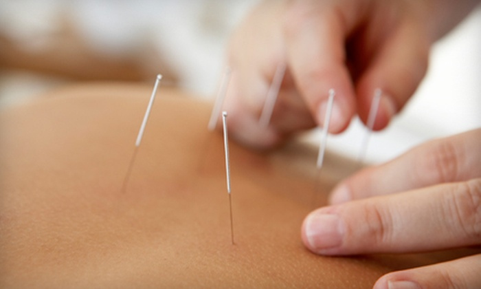 Limestone Community Acupuncture - Downtown Kingston: Acupuncture Package for One or Two or Stress-Treatment Package at Limestone Community Acupuncture (Up to 90% Off)